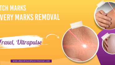 Stretch Marks / Delivery Marks Removal